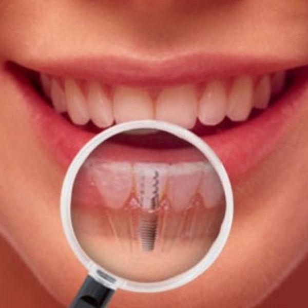 ¿Qué es una cirugía de implante dental?